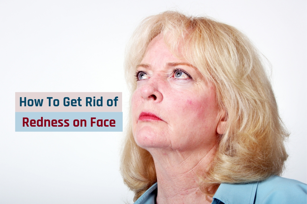 how to get rid of redness on face