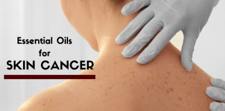 EEssential Oils for skin cancer