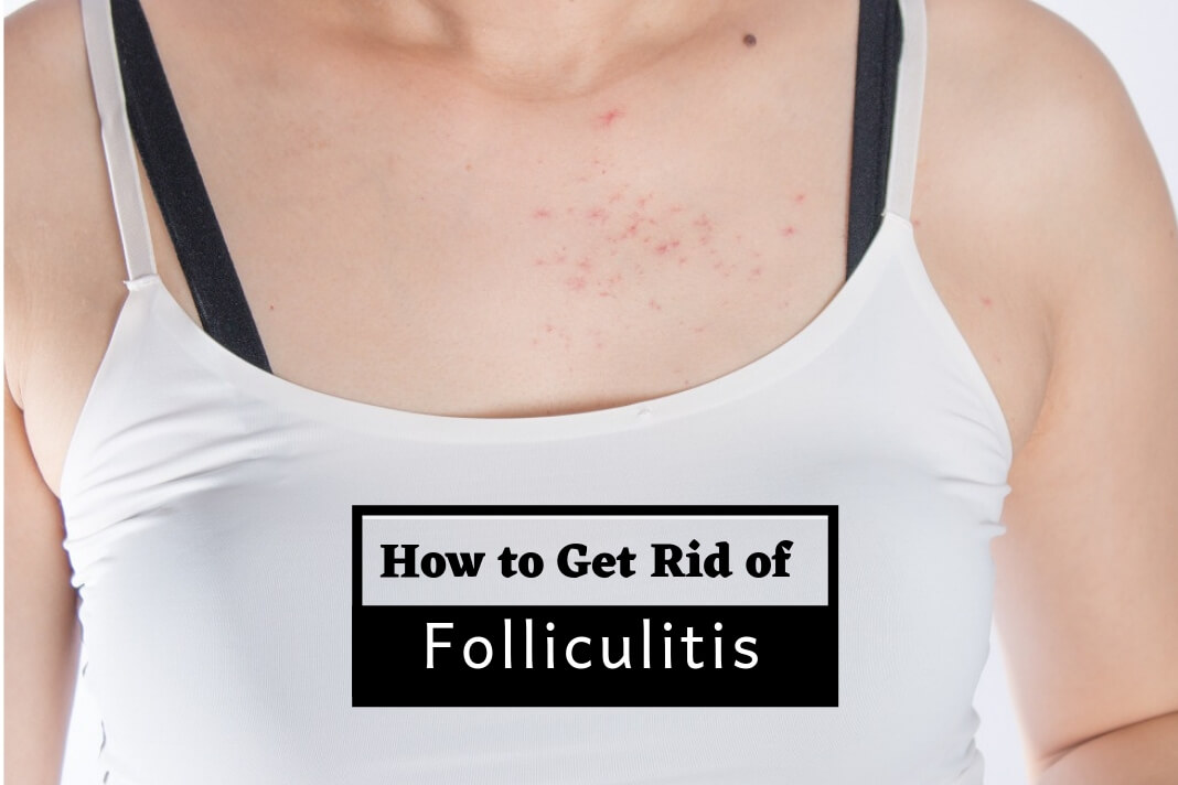 How to Treat Folliculitis