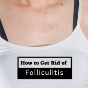 How to Treat Folliculitis