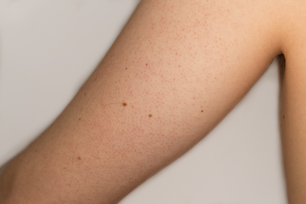 How to Get Rid of Keratosis Pilaris with Wonderful natural