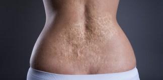 get rid of burn scars