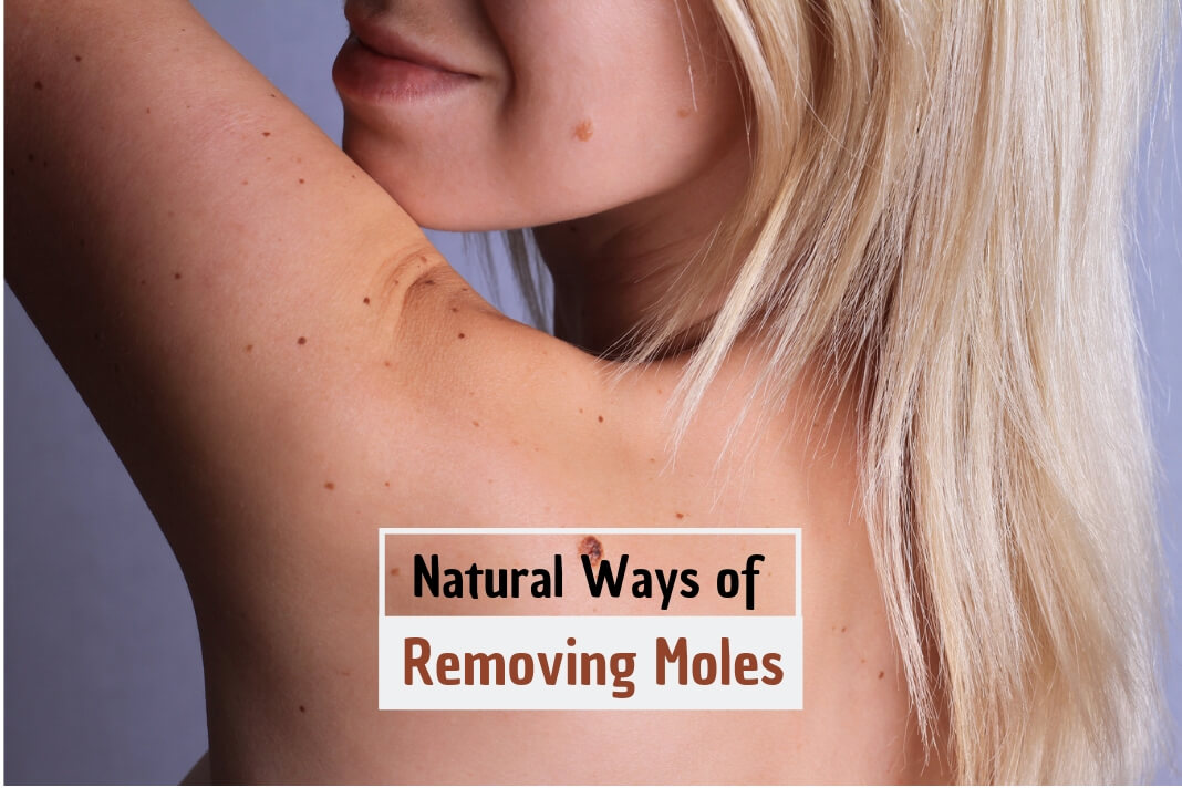 mole removal at home