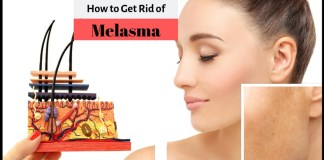 how to get rid of melesma