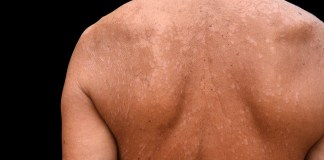 how to get rid tinea versicolor