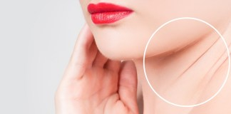 neck wrinkles