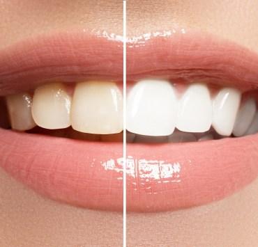 turmeric teeth