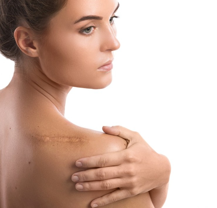 Home remedies of Coconut Oil for Treating Scars at Home