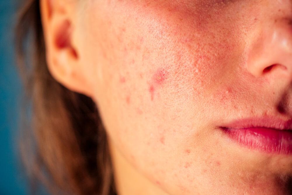 Castor oil for curing acne