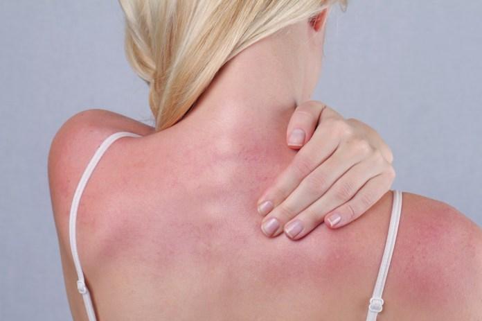 women with sunburn
