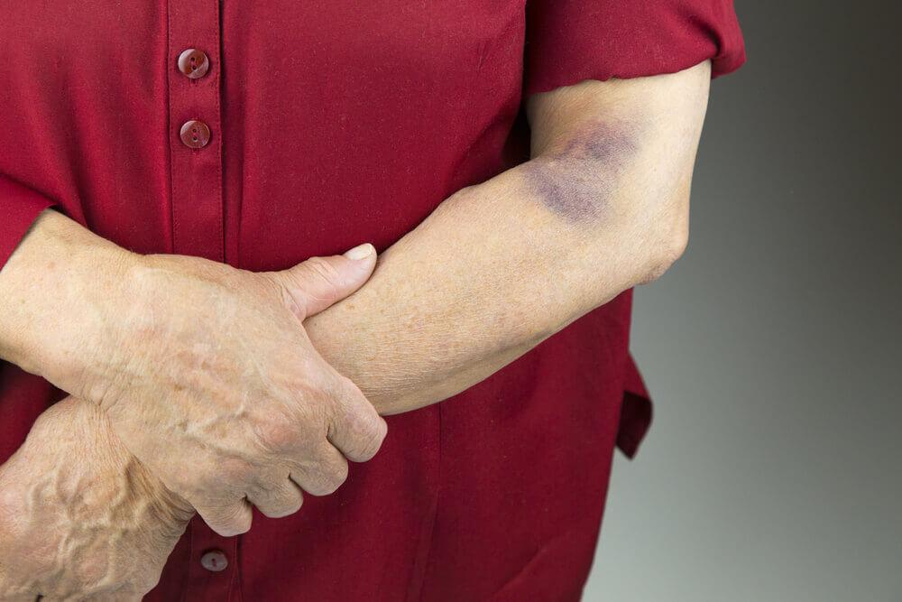 skin bruises