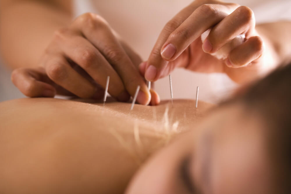 health benefits of acupuncture back pain