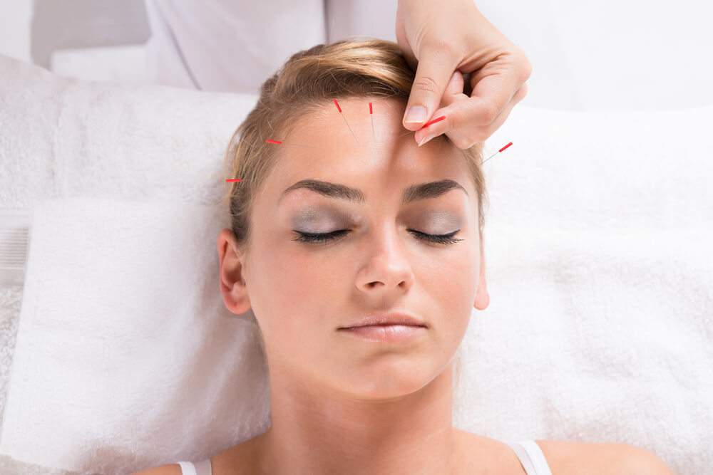 acupuncture therapy session for Headaches