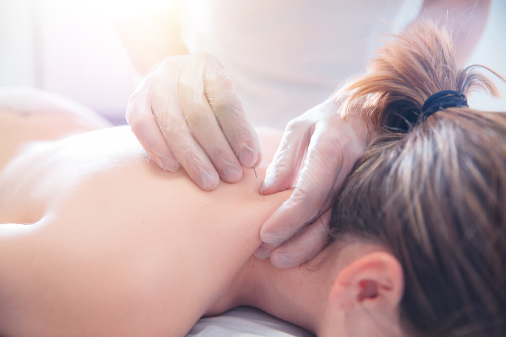 How many sessions of acupuncture for back pain?