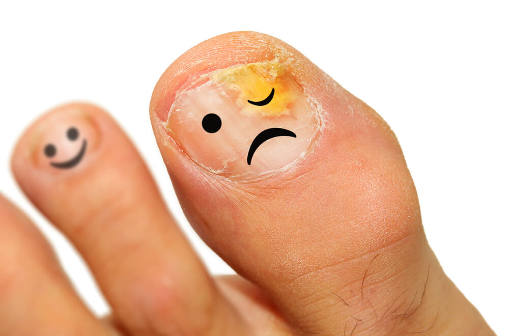 ACV for toenail fungus