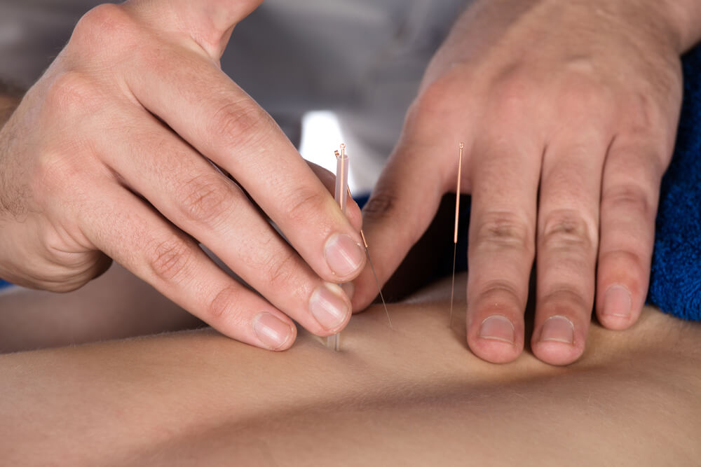 Acupuncture Needles on Back