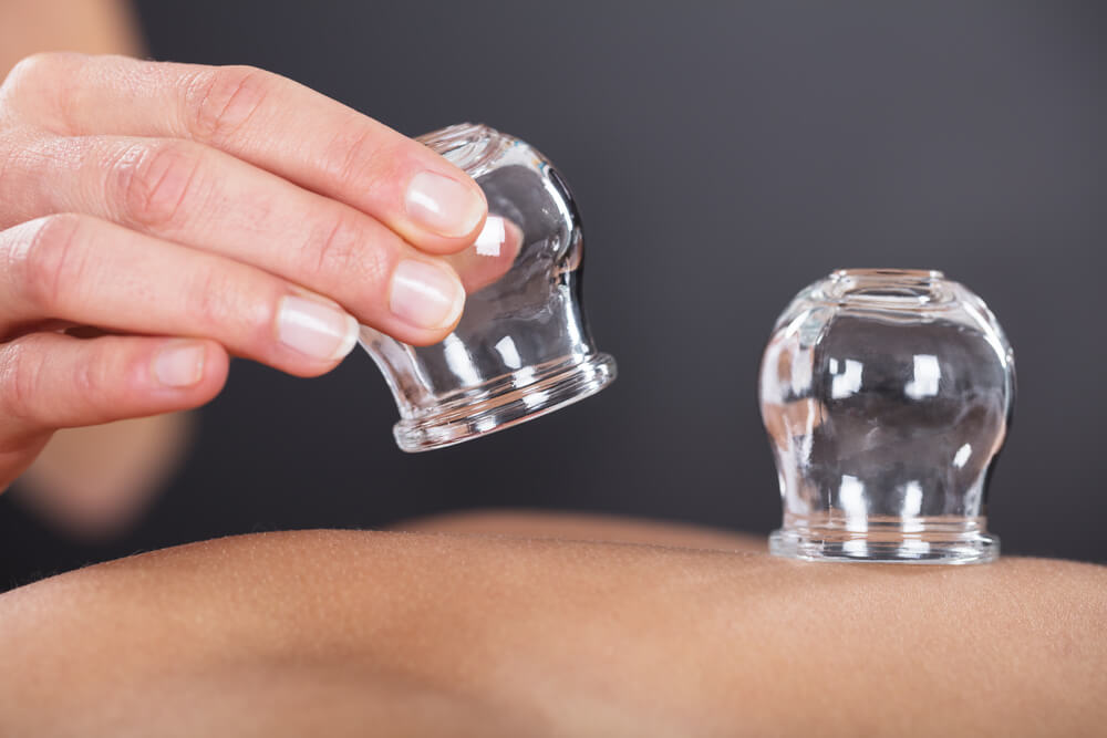 Cupping for cellulite