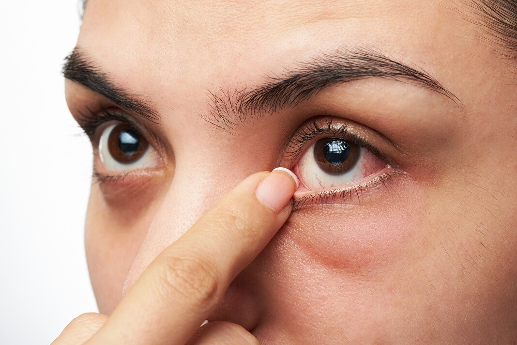 warm compress for dry eyes