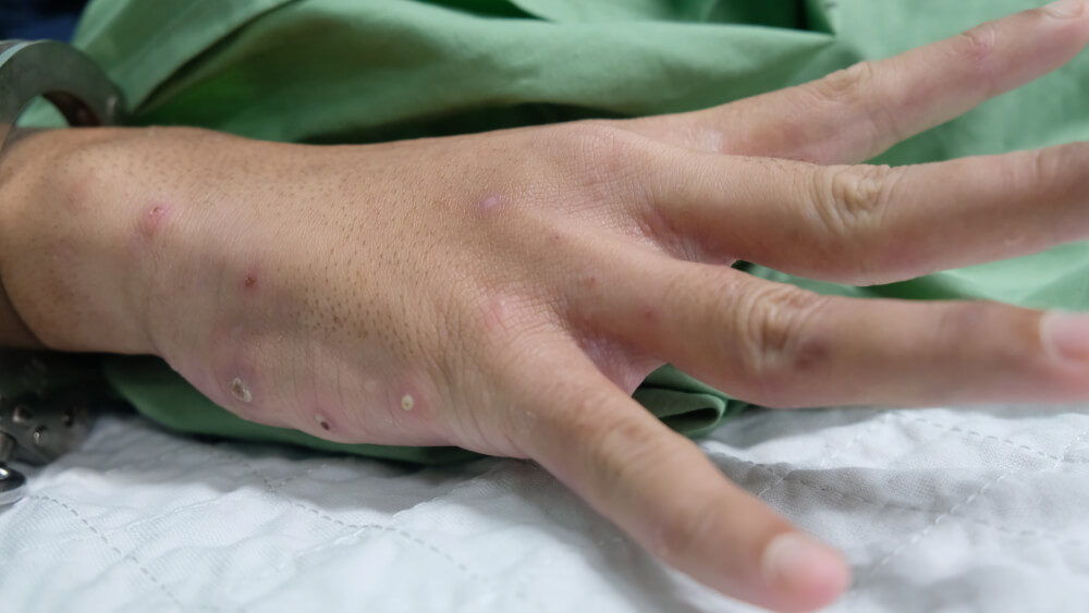 cure scabies