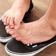 athletes feet