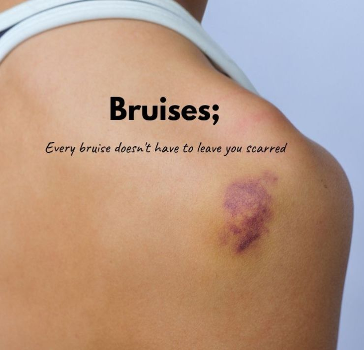 how to cure bruises