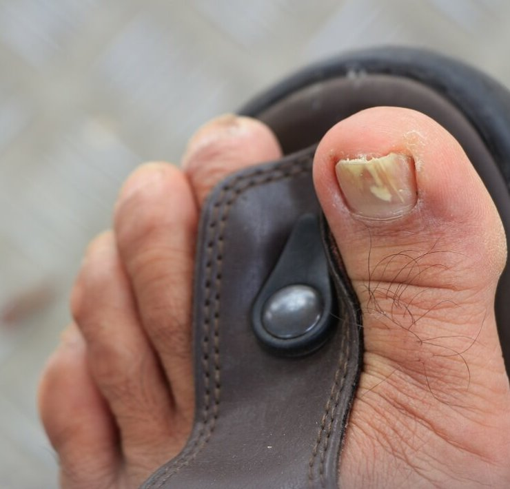oregano oil for toenail fungus