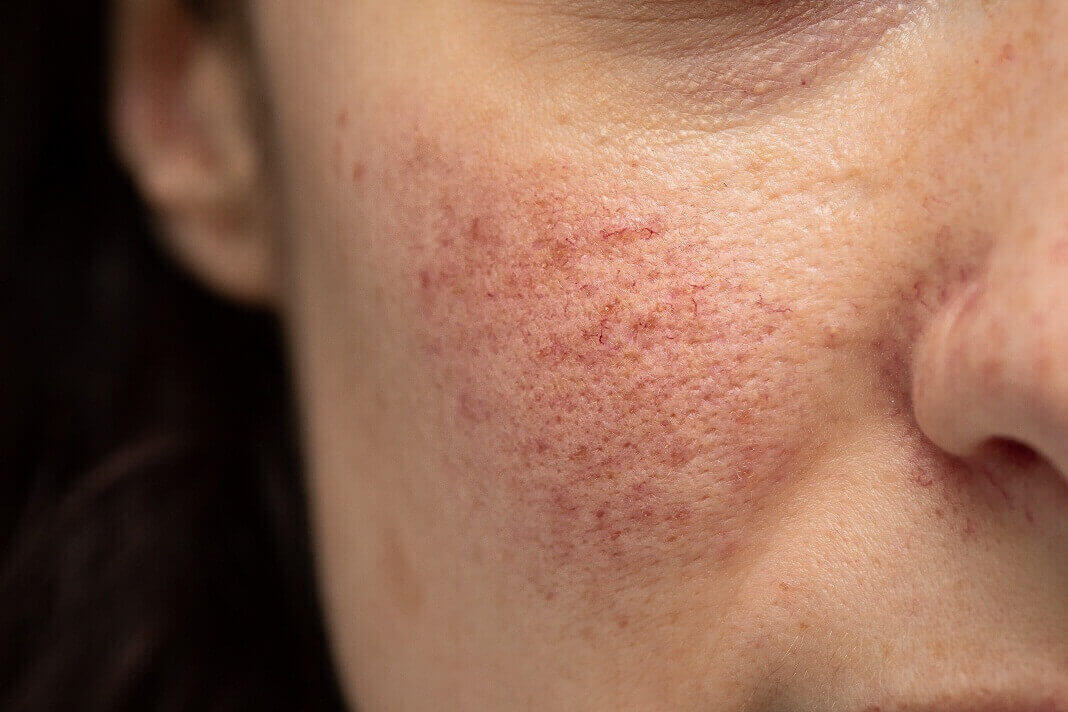 probiotics for rosacea