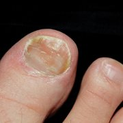 Oregano Oil for Warts: A Less Known Yet Very Effective