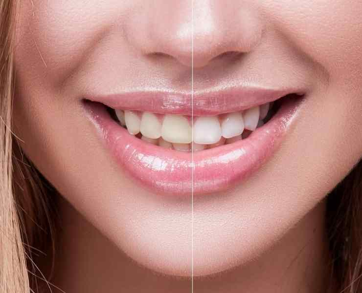Coconut oil for teeth whitening