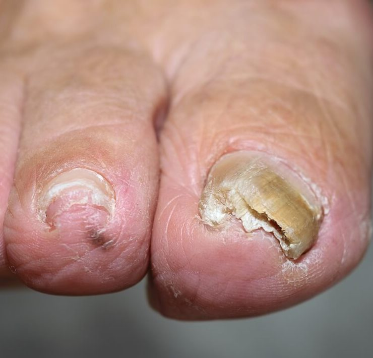 bleach for toenail fungus