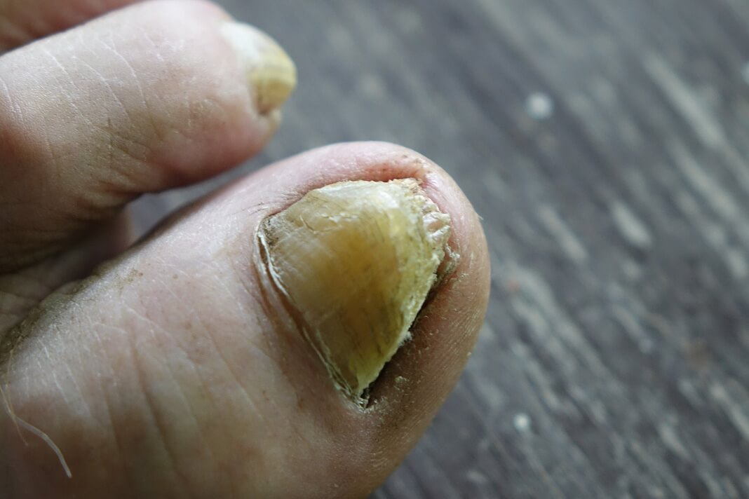 epsom salt for toenail fungus