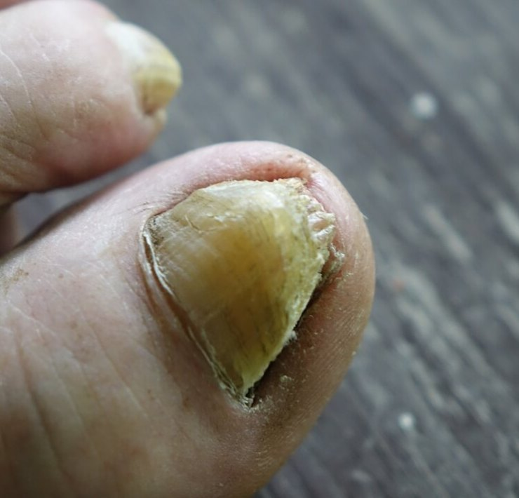 epsom salt for toenail fungus