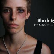 Get Rid of a Black Eye