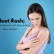 How To Cure Heat Rash