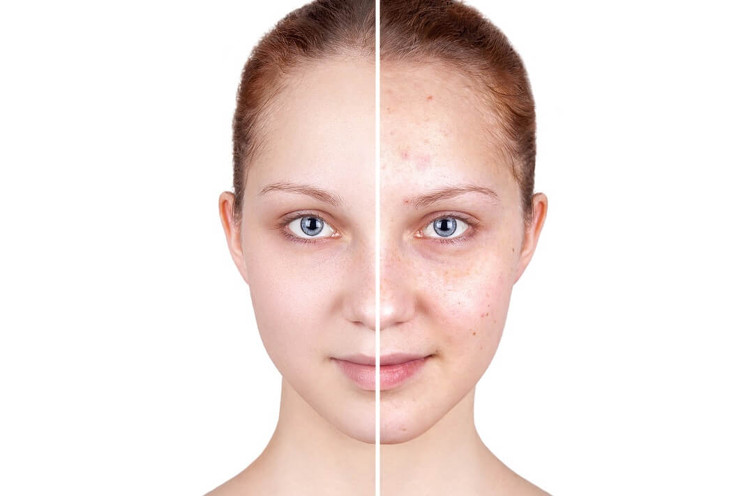 Valid Benefits Of Using Manuka Honey For Acne How To Cure