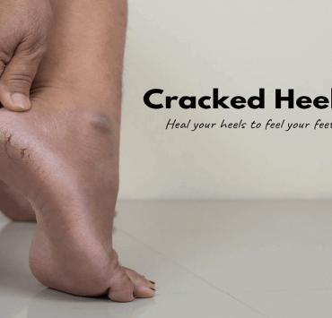Cracked Heels.