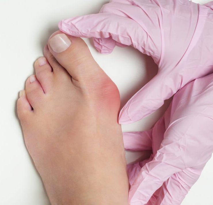 home remedies for bunions