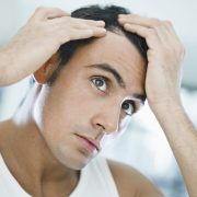 how to stop receding hairline