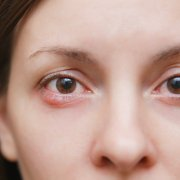 warm compress for stye