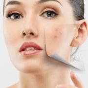 Vitamin E for Scars