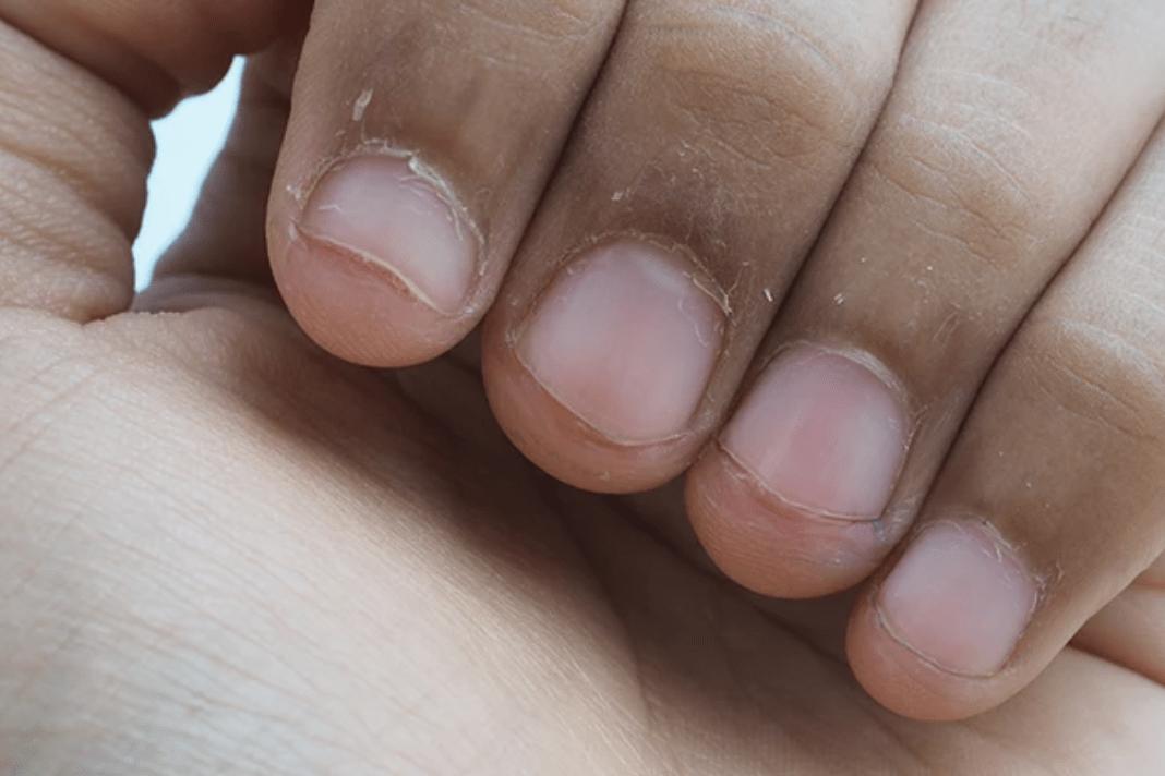 Home Remedies To Stop Peeling Fingertips