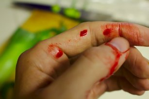 How to find a way to stop a cut from bleeding