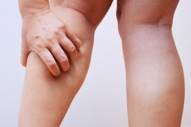 How to find a way to stop muscle cramps