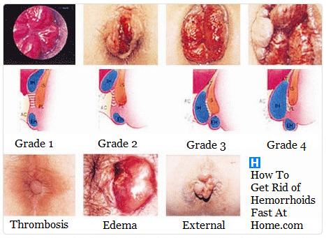 hemorrojder grad 4