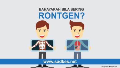 Photo of Rontgen: Bahayakah Bila Sering Rontgen?