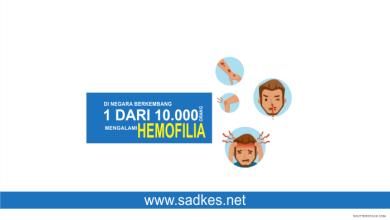Photo of Hemofilia : Definisi, Gejala, dan Cara Mengatasinya