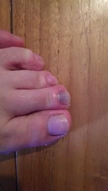 Marathon runner novice nail of blood stasis