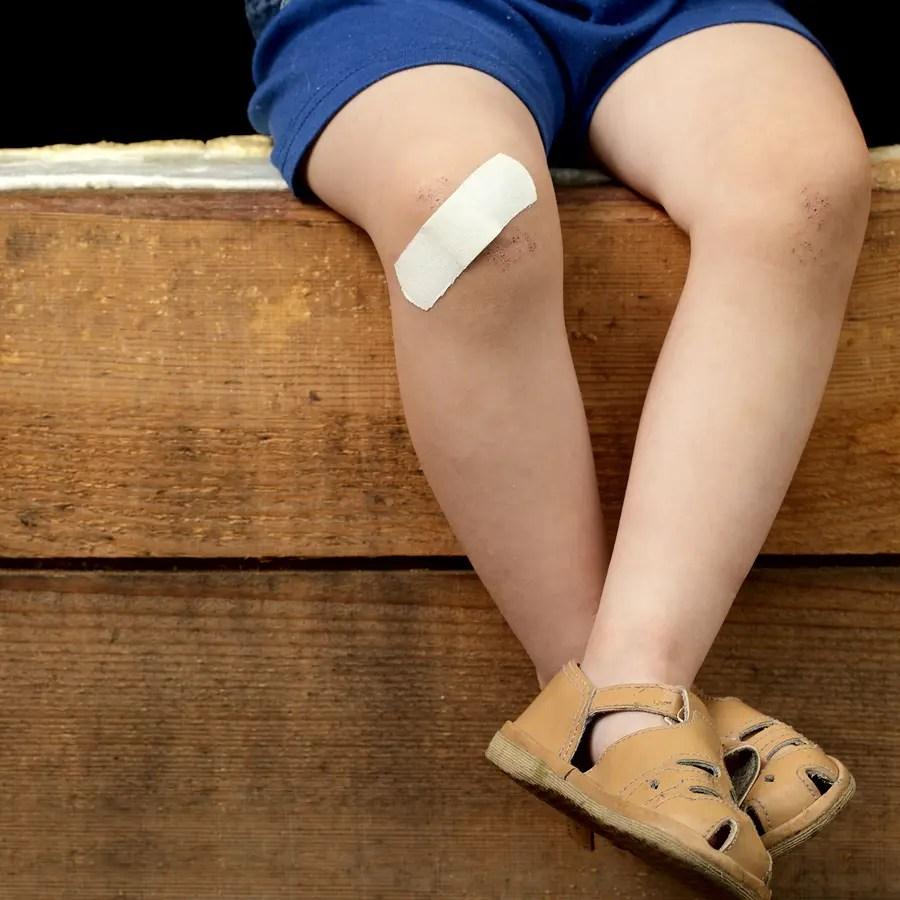 L'huile de nigelle un traitement naturel contre les cicatrices