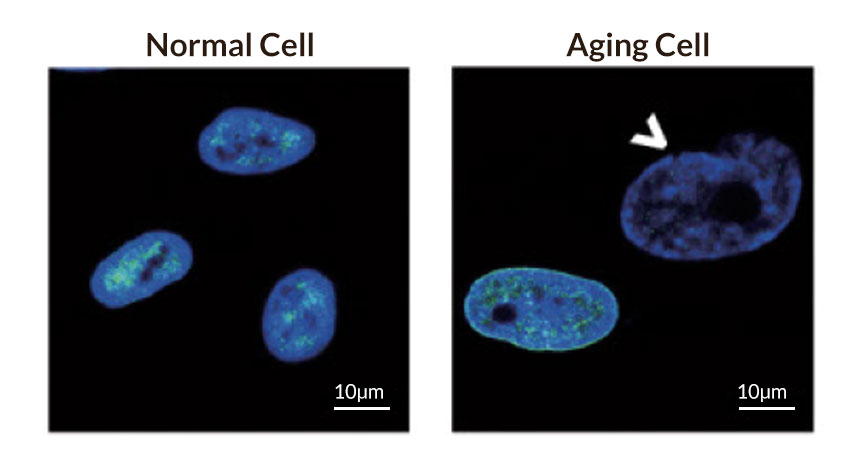 New research could be key to our understanding of how the aging process works – Ominy Science