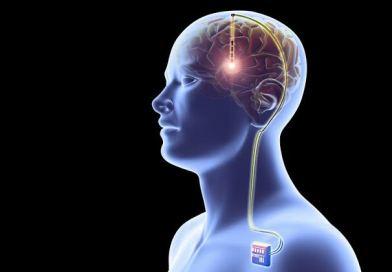 Electrical brain implant